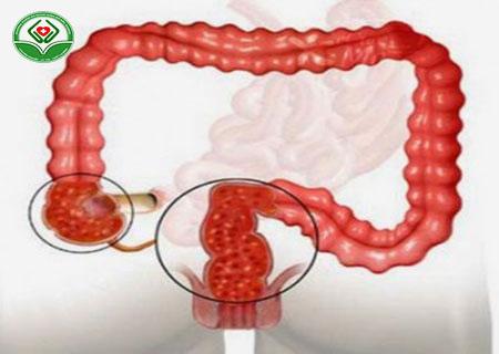 cách điều trị polyp hậu môn