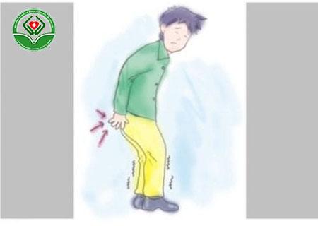 bệnh ngứa rát hậu môn là gì