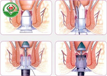 phương pháp điều trị rò rỉ hậu môn