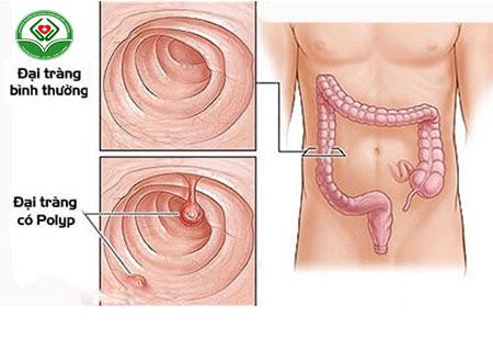 polyp hậu môn là bệnh gì
