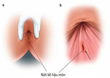 Tình trạng đau nhói ở hậu môn gây nhiều phiền toái cho người bệnh