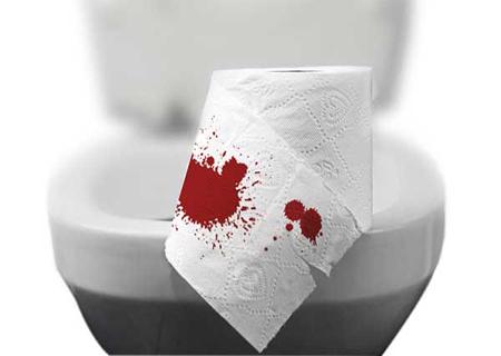 Cách cầm máu khi bị trĩ bằng phương pháp hiện đại