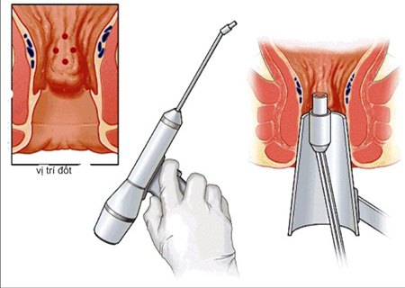 Phương pháp HCPT chữa bệnh trĩ an toàn