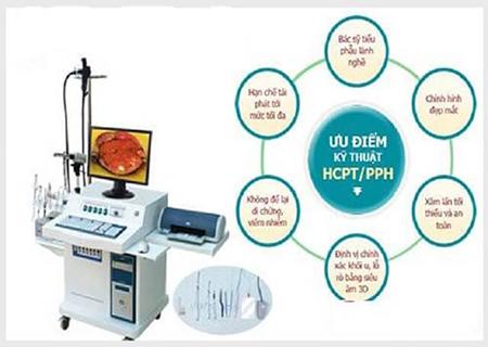 Phương pháp HCPT có nhiều ưu điểm vượt trội trong điều trị bệnh trĩ
