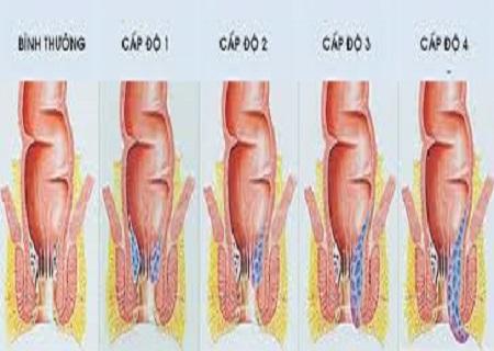 bệnh trĩ bao gồm 4 cấp độ