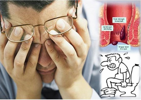 Bệnh trĩ được điều trị dứt điểm hay không còn phụ thuộc vào nhiều yếu tố