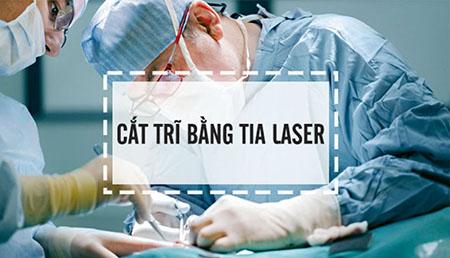 Cắt trĩ bằng laser hết bao nhiêu tiền